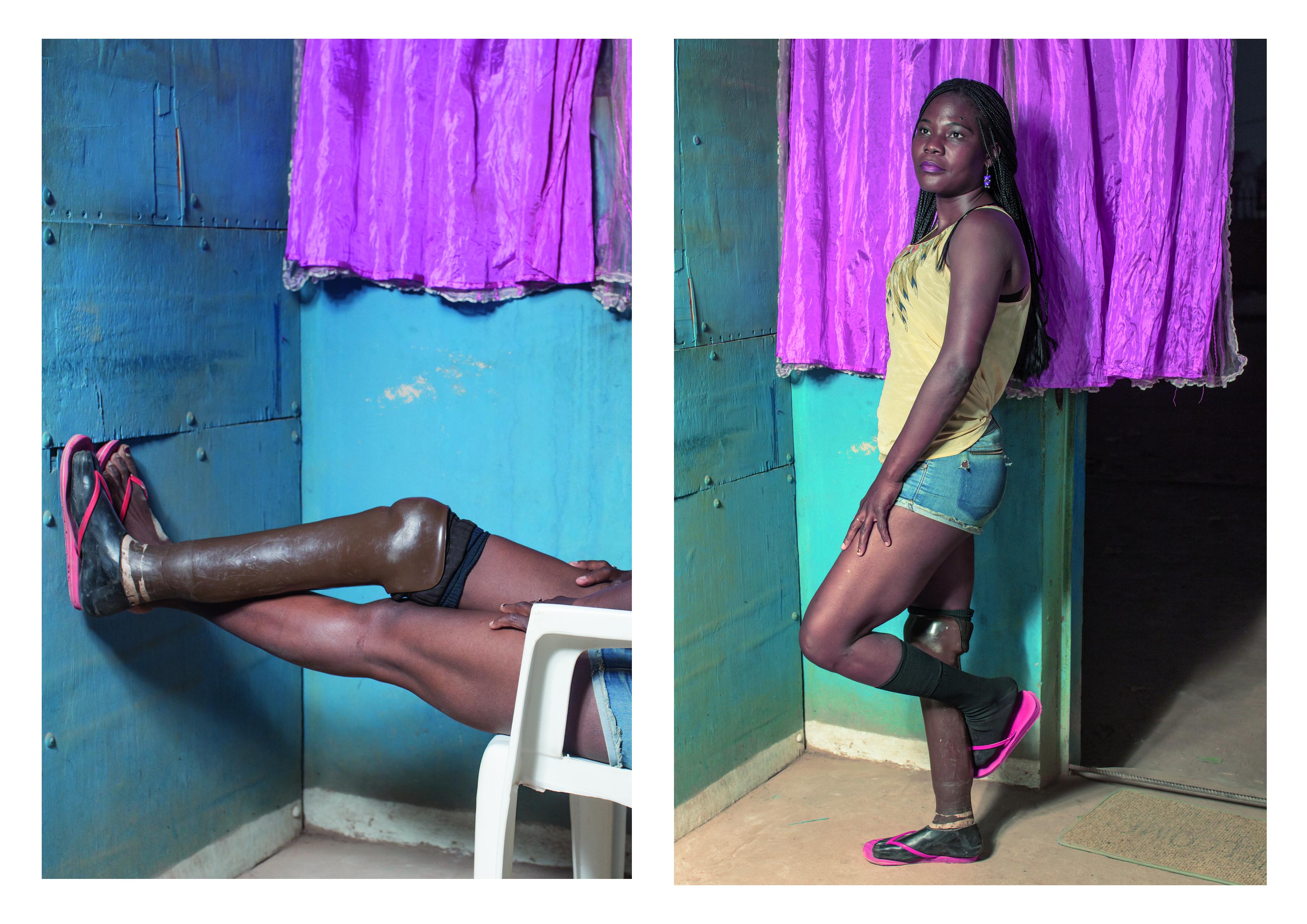 Fotos aus dem Forschungsprojekt Minenopfer in Angola. Kulturelle Techniken im Umgang mit beschädigter Identität ©Flurina Rothenberger, Bitten Stetter